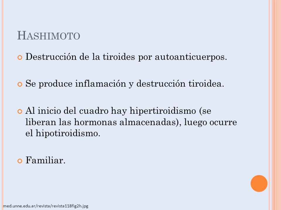 H ASHIMOTO Destrucción de la tiroides por autoanticuerpos. Se produce inflamación y destrucción tiroidea. Al inicio del cuadro hay hipertiroidismo (se