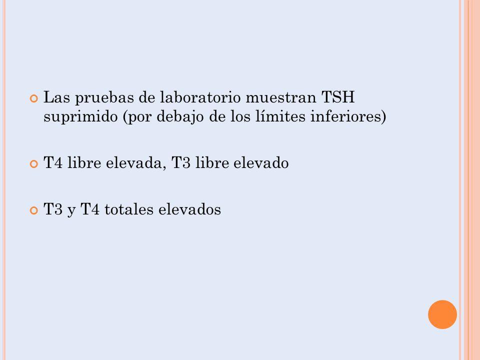 Las pruebas de laboratorio muestran TSH suprimido (por debajo de los límites inferiores) T4 libre elevada, T3 libre elevado T3 y T4 totales elevados