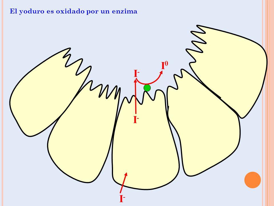 T IROIDITIS DE H ASHIMOTO La mayoría de casos espontáneos se deben a tiroiditis crónica autoinmune (Hashimoto) Enfermedad hereditaria afecta más a mujeres, y en la cual el sistema inmune por un error ataca a la tiroides Más común en personas con antecedentes familiares o personales de enfermedad inmunológica artritis reumatoidea, vitiligo, lupus, miastenia gravis, diabetes tipo 1 med.unne.edu.ar/revista/revista105/fig2h.jpg