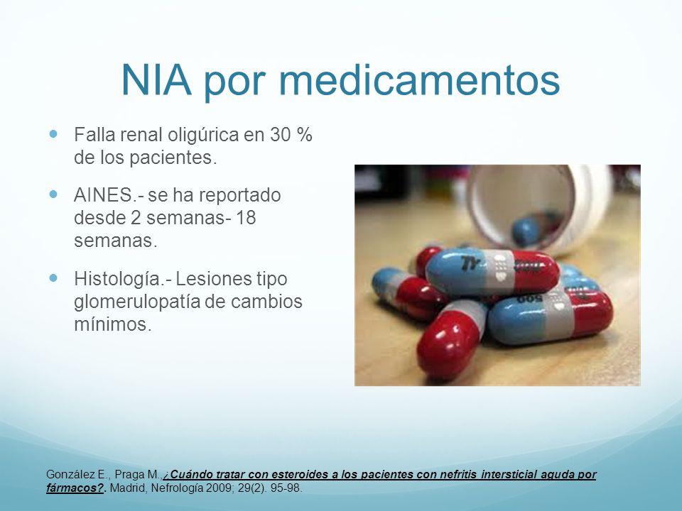 NIA por medicamentos Falla renal oligúrica en 30 % de los pacientes. AINES.- se ha reportado desde 2 semanas- 18 semanas. Histología.- Lesiones tipo g