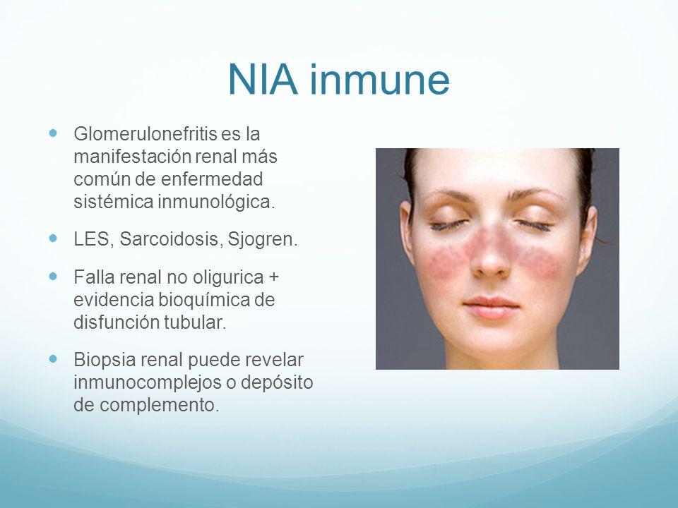 NIA inmune Glomerulonefritis es la manifestación renal más común de enfermedad sistémica inmunológica. LES, Sarcoidosis, Sjogren. Falla renal no oligu