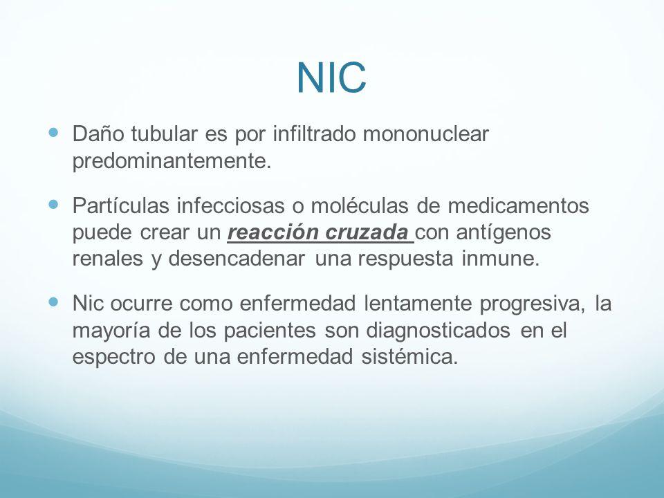 NIC Daño tubular es por infiltrado mononuclear predominantemente. Partículas infecciosas o moléculas de medicamentos puede crear un reacción cruzada c