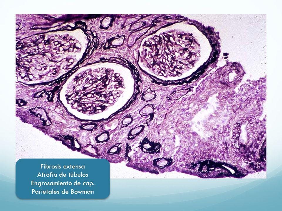 Fibrosis extensa Atrofia de túbulos Engrosamiento de cap. Parietales de Bowman Fibrosis extensa Atrofia de túbulos Engrosamiento de cap. Parietales de