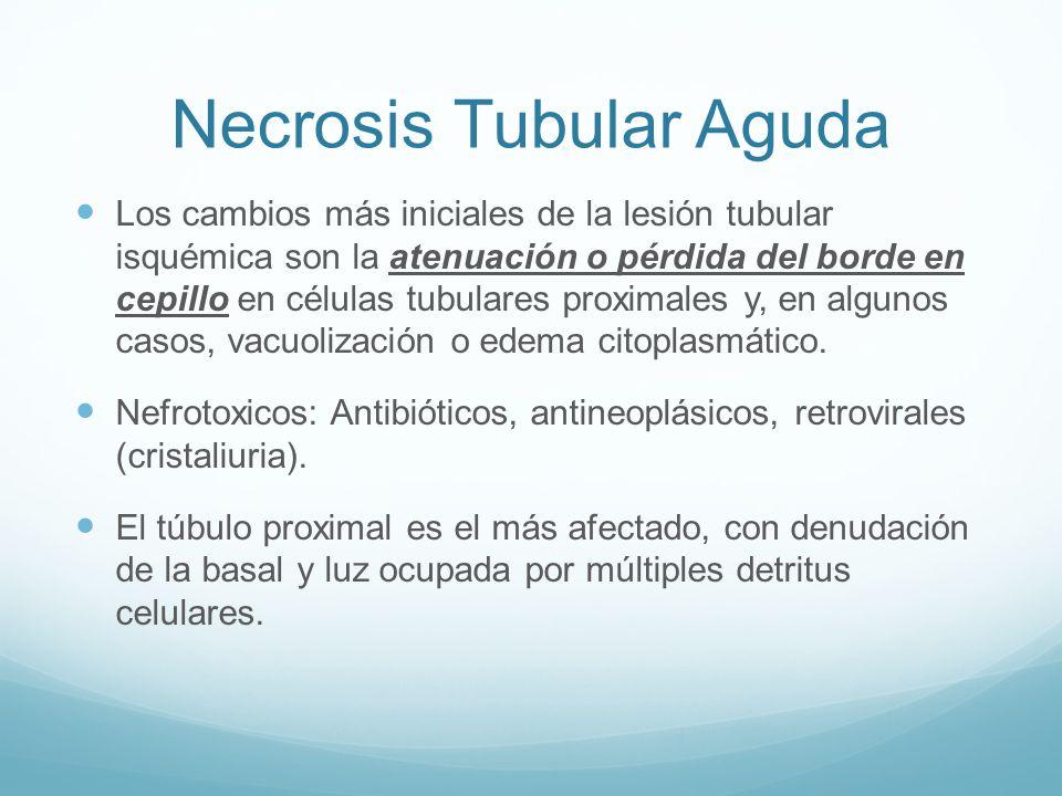 Necrosis Tubular Aguda Los cambios más iniciales de la lesión tubular isquémica son la atenuación o pérdida del borde en cepillo en células tubulares proximales y, en algunos casos, vacuolización o edema citoplasmático.