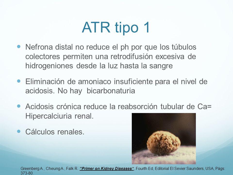 ATR tipo 1 Nefrona distal no reduce el ph por que los túbulos colectores permiten una retrodifusión excesiva de hidrogeniones desde la luz hasta la sangre Eliminación de amoniaco insuficiente para el nivel de acidosis.
