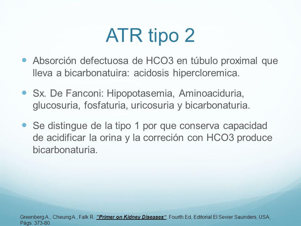 ATR tipo 2 Absorción defectuosa de HCO3 en túbulo proximal que lleva a bicarbonatuira: acidosis hipercloremica. Sx. De Fanconi: Hipopotasemia, Aminoac