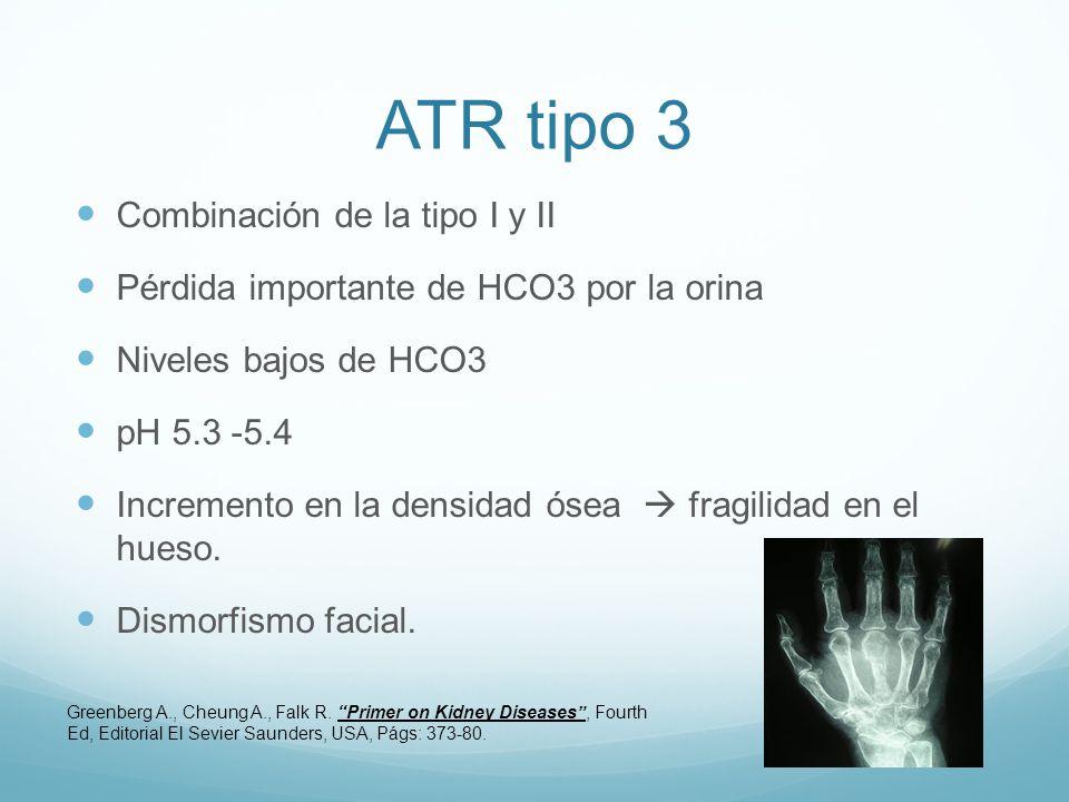 ATR tipo 3 Combinación de la tipo I y II Pérdida importante de HCO3 por la orina Niveles bajos de HCO3 pH 5.3 -5.4 Incremento en la densidad ósea fragilidad en el hueso.