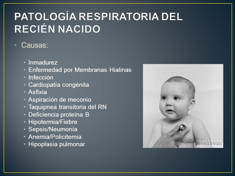 Causas: Inmadurez Enfermedad por Membranas Hialinas Infección Cardiopatía congénita Asfixia Aspiración de meconio Taquipnea transitoria del RN Deficie