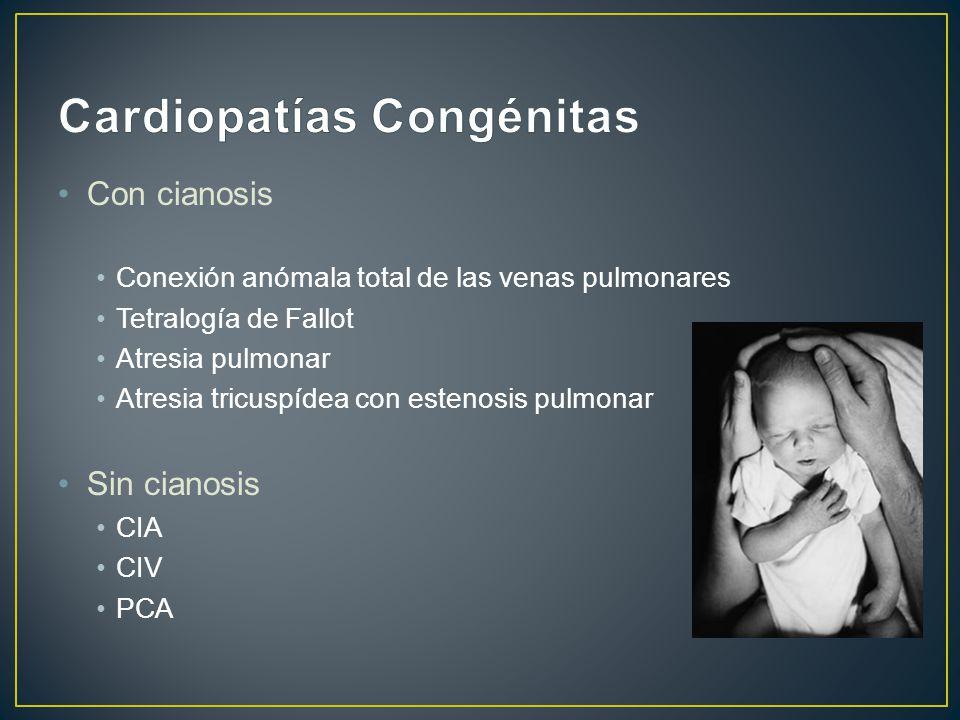 Con cianosis Conexión anómala total de las venas pulmonares Tetralogía de Fallot Atresia pulmonar Atresia tricuspídea con estenosis pulmonar Sin cianosis CIA CIV PCA