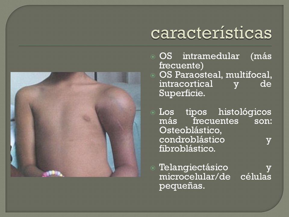 OS intramedular (más frecuente) OS Paraosteal, multifocal, intracortical y de Superficie.
