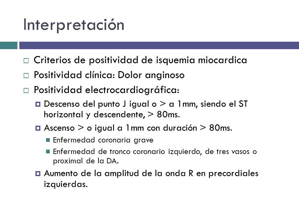 Interpretación Criterios de positividad de isquemia miocardica Positividad clínica: Dolor anginoso Positividad electrocardiográfica: Descenso del punt