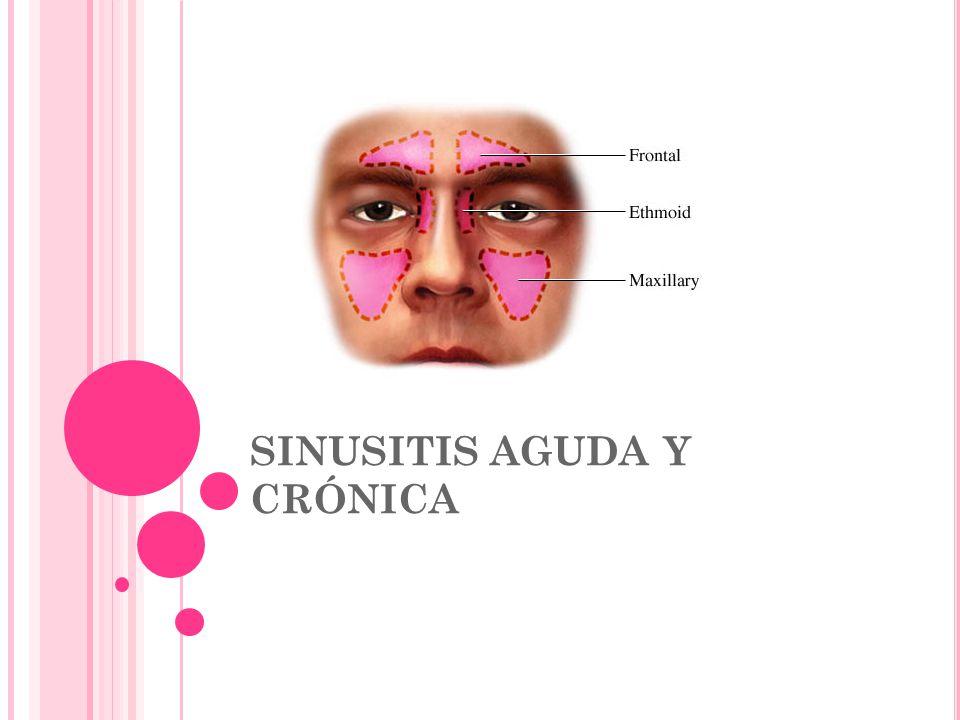 SINUSITIS AGUDA Y CRÓNICA