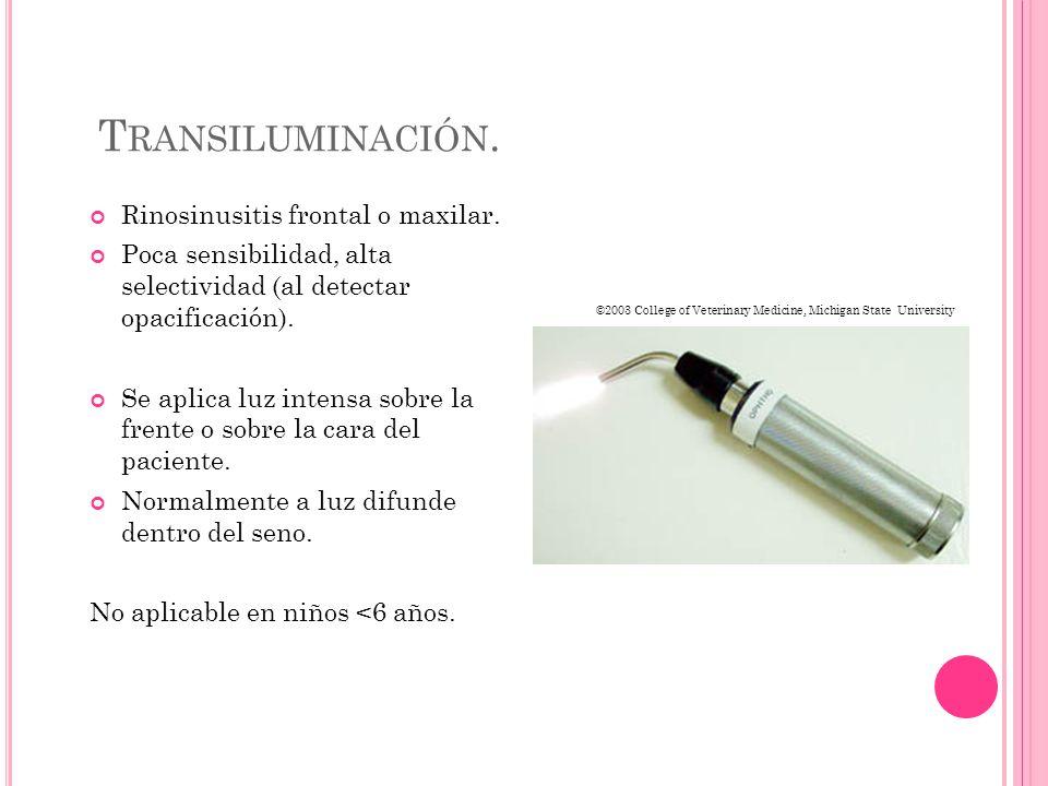 T RANSILUMINACIÓN. Rinosinusitis frontal o maxilar.