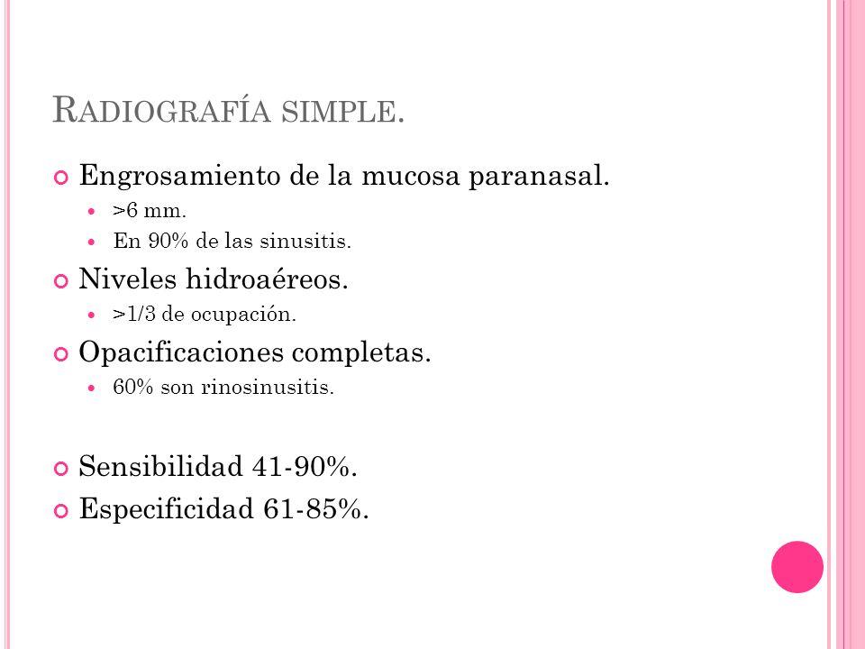 R ADIOGRAFÍA SIMPLE. Engrosamiento de la mucosa paranasal.