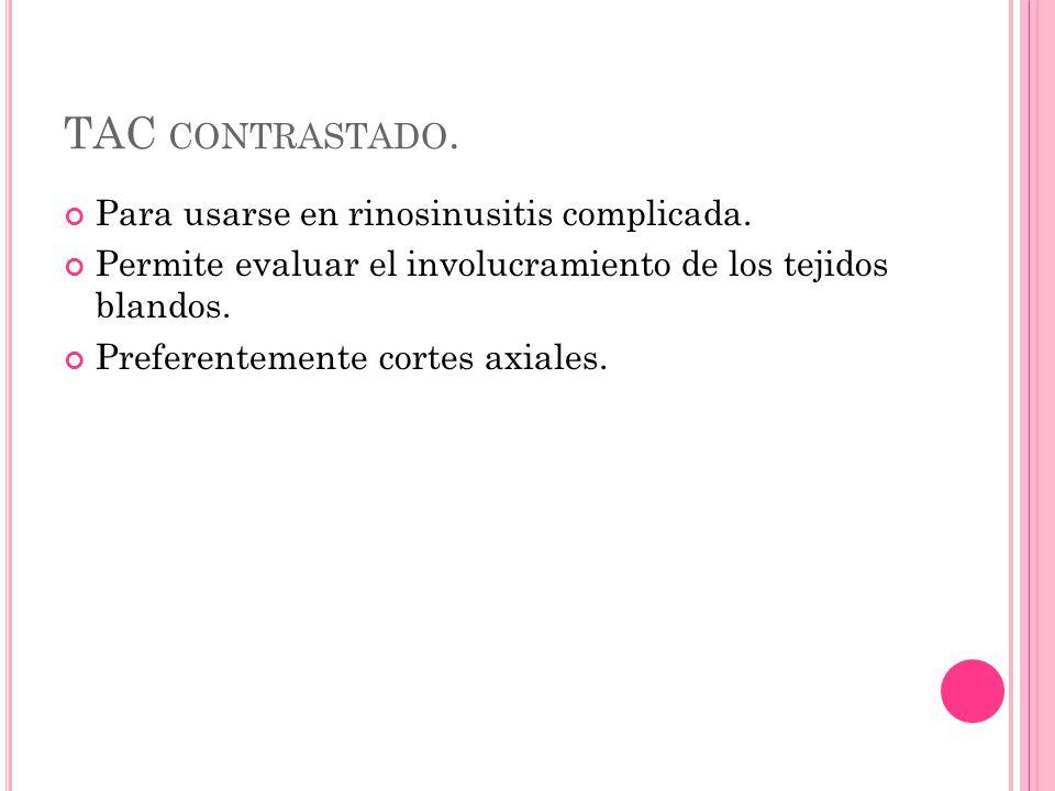 TAC CONTRASTADO. Para usarse en rinosinusitis complicada.