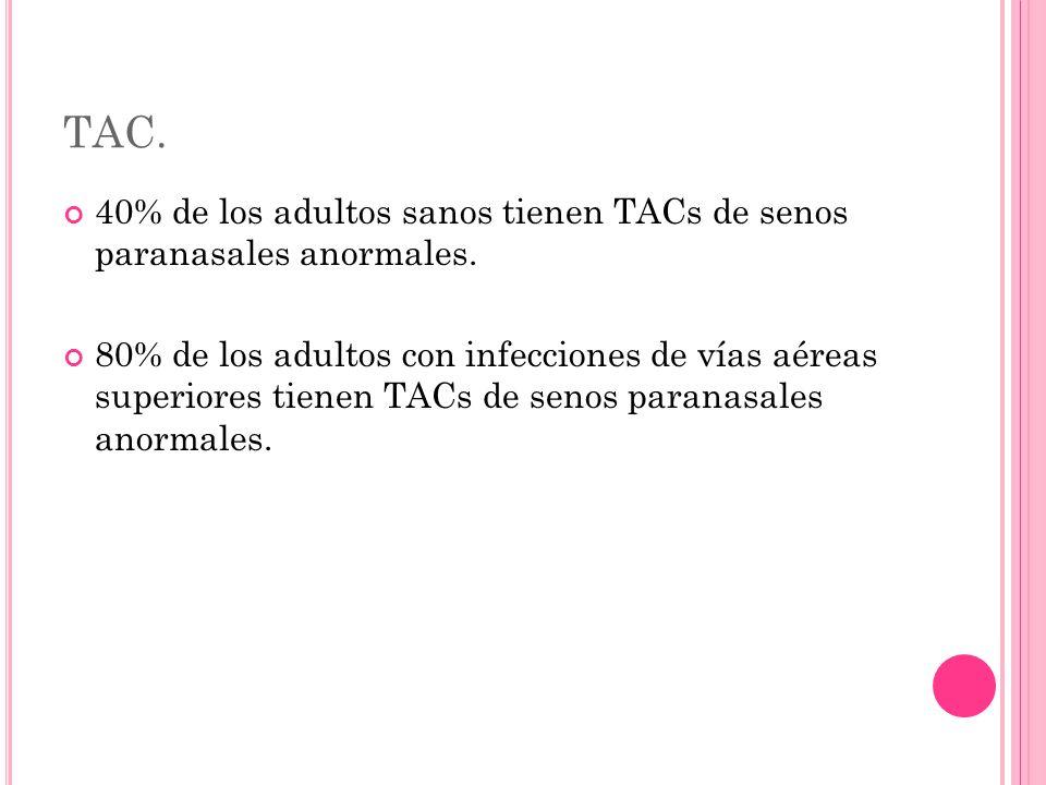 TAC. 40% de los adultos sanos tienen TACs de senos paranasales anormales.