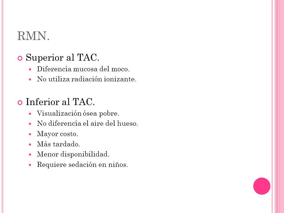 RMN. Superior al TAC. Diferencía mucosa del moco.