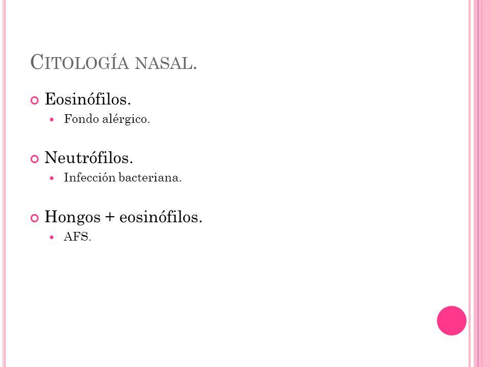 C ITOLOGÍA NASAL. Eosinófilos. Fondo alérgico. Neutrófilos.