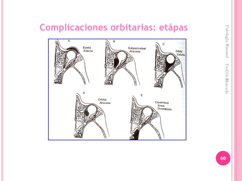 Complicaciones orbitarias: etápas Patologìa Sinusal Prof.Dr.Mercado 60
