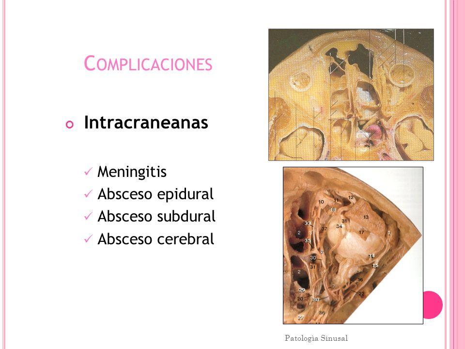 C OMPLICACIONES Intracraneanas Meningitis Absceso epidural Absceso subdural Absceso cerebral Patologìa Sinusal 61