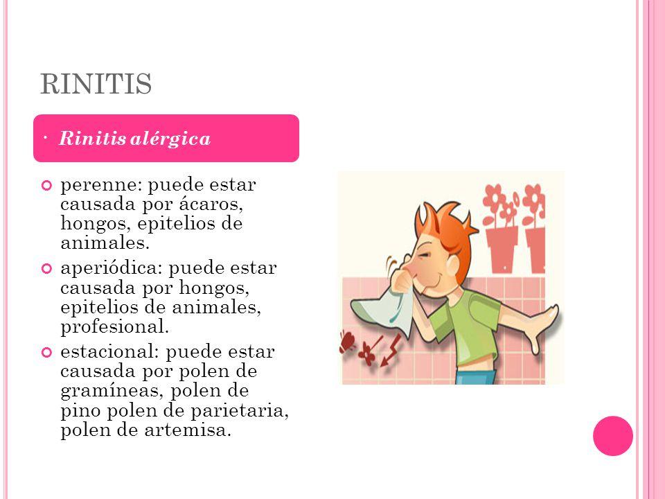 R ADIOGRAFÍA SIMPLE.Proyección de Waters, paciente con sinusitis maxilar.