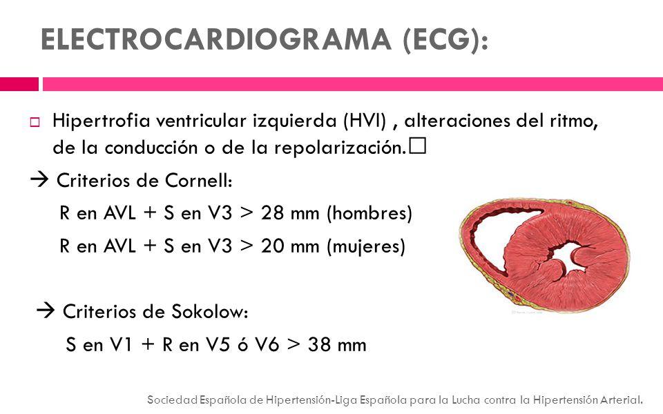 ELECTROCARDIOGRAMA (ECG): Hipertrofia ventricular izquierda (HVI), alteraciones del ritmo, de la conducción o de la repolarización. Criterios de Corne