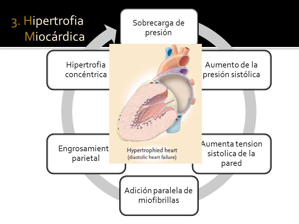 Sobrecarga de presión Aumento de la presión sistólica Aumenta tension sistolica de la pared Adición paralela de miofibrillas Engrosamiento parietal Hipertrofia concéntrica 3.