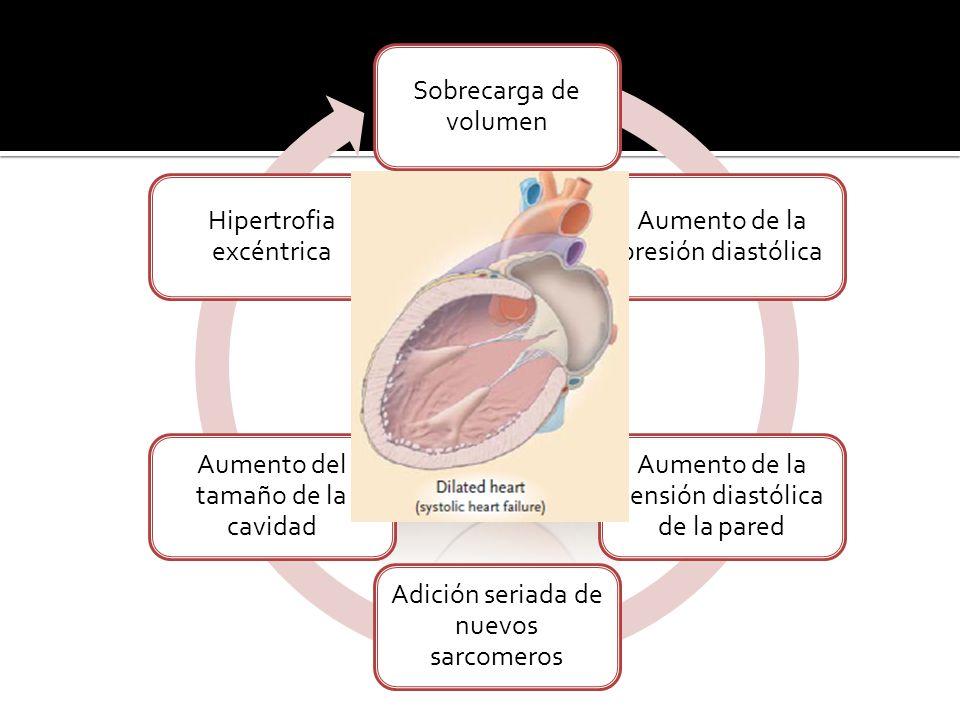 Sobrecarga de volumen Aumento de la presión diastólica Aumento de la tensión diastólica de la pared Adición seriada de nuevos sarcomeros Aumento del tamaño de la cavidad Hipertrofia excéntrica