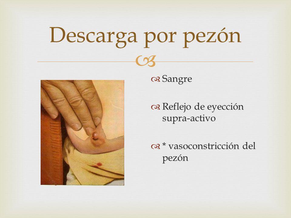 Descarga por pezón Sangre Reflejo de eyección supra-activo * vasoconstricción del pezón