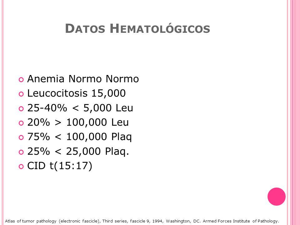 D ATOS H EMATOLÓGICOS Anemia Normo Normo Leucocitosis 15,000 25-40% < 5,000 Leu 20% > 100,000 Leu 75% < 100,000 Plaq 25% < 25,000 Plaq.