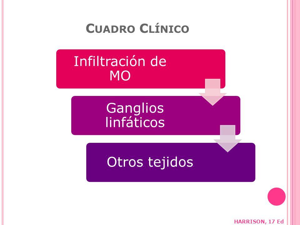 C UADRO C LÍNICO Infiltración de MO Ganglios linfáticos Otros tejidos HARRISON, 17 Ed