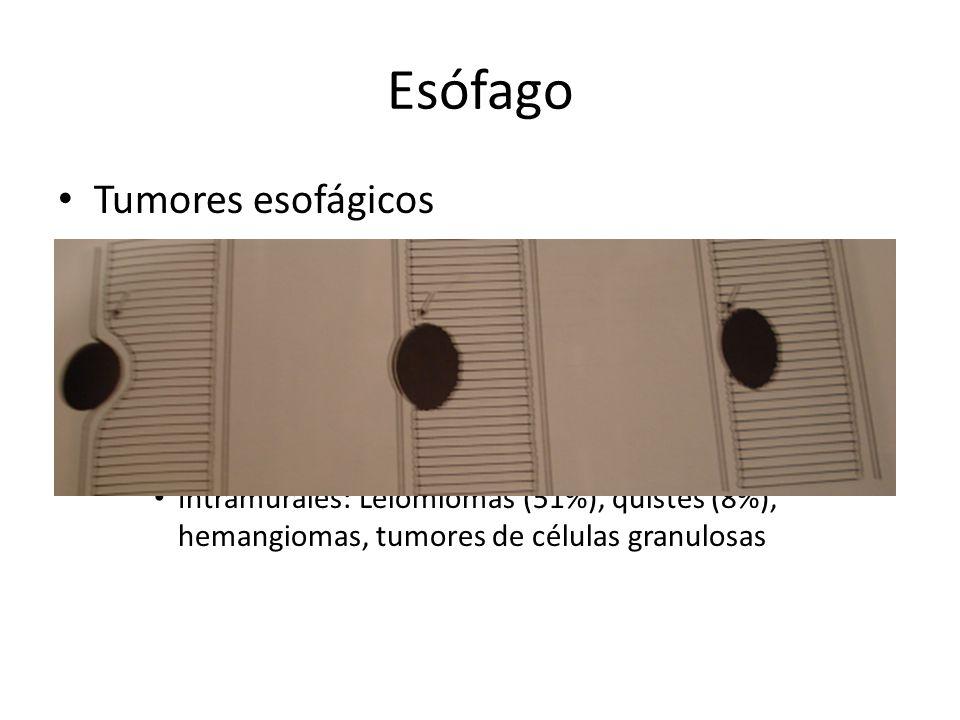 Esófago Tumores esofágicos – Benignos: 20% de tumores esofágicos – Intraluminales o intramurales Intraluminales: Pólipos (25%), papilomas (3%), otros: