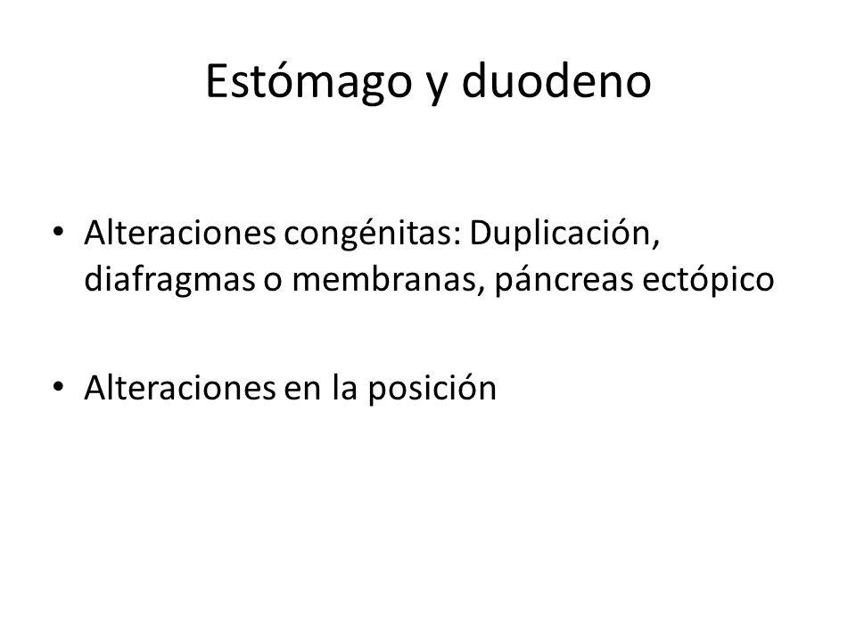 Estómago y duodeno Alteraciones congénitas: Duplicación, diafragmas o membranas, páncreas ectópico Alteraciones en la posición
