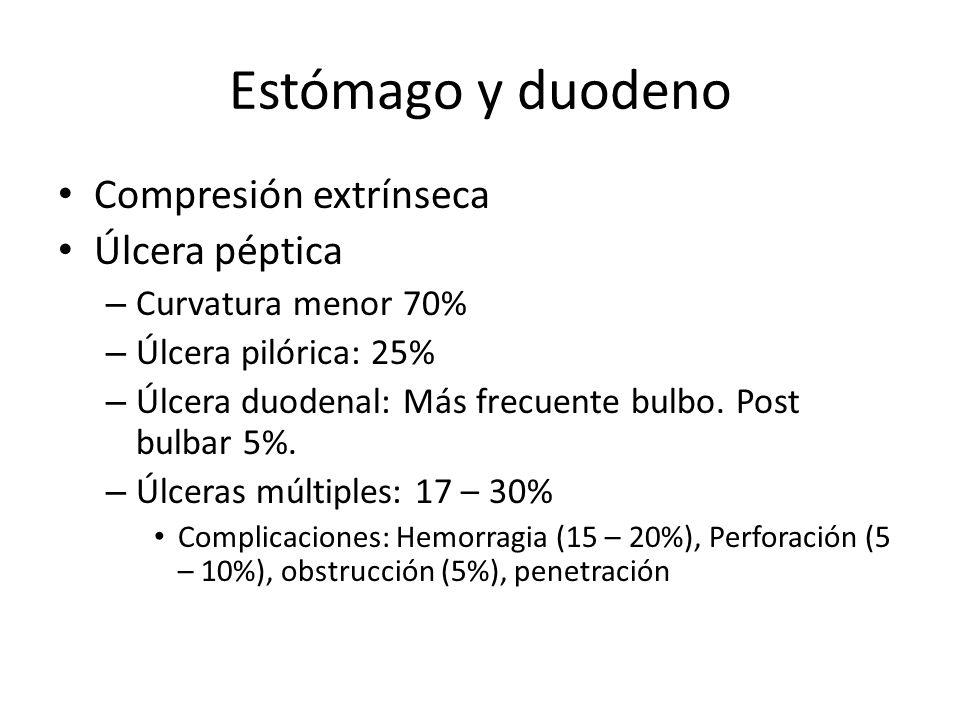Estómago y duodeno Compresión extrínseca Úlcera péptica – Curvatura menor 70% – Úlcera pilórica: 25% – Úlcera duodenal: Más frecuente bulbo. Post bulb