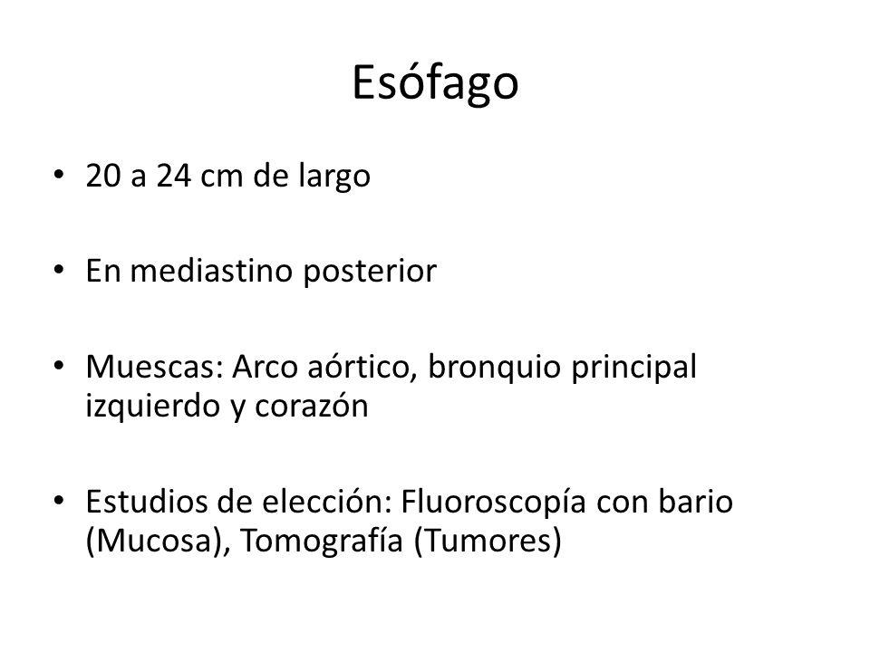 20 a 24 cm de largo En mediastino posterior Muescas: Arco aórtico, bronquio principal izquierdo y corazón Estudios de elección: Fluoroscopía con bario
