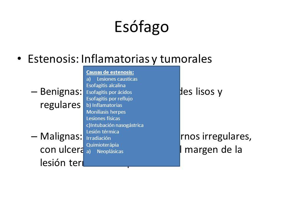 Esófago Estenosis: Inflamatorias y tumorales – Benignas: Concéntricas, de bordes lisos y regulares – Malignas: Excéntricas, de contornos irregulares,