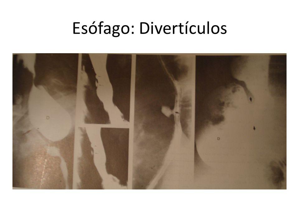 Esófago: Divertículos Formaciones saculares que se comunican a la luz a través de un orificio o cuello – Tracción: Todas las capas – Pulsión: Sólo muc