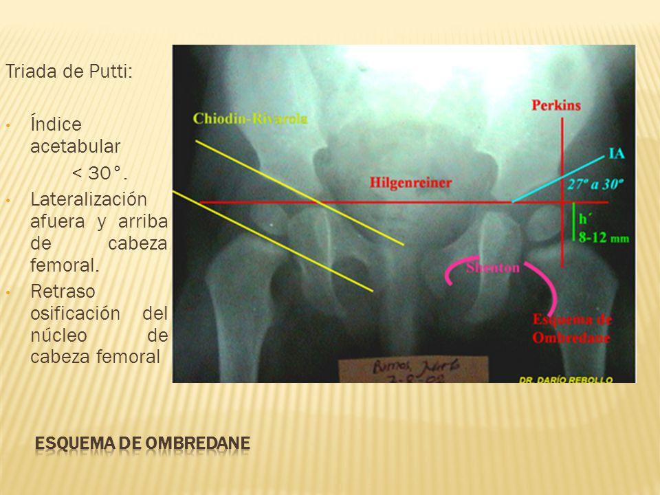 Triada de Putti: Índice acetabular < 30°. Lateralización afuera y arriba de cabeza femoral. Retraso osificación del núcleo de cabeza femoral