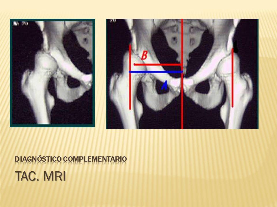TAC. MRI