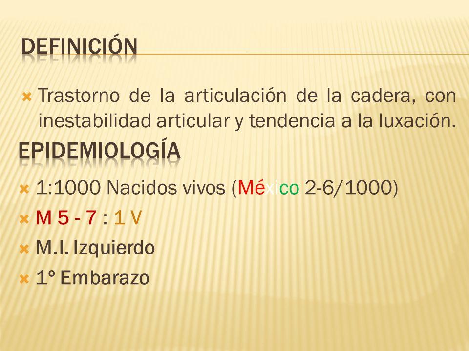 Trastorno de la articulación de la cadera, con inestabilidad articular y tendencia a la luxación. 1:1000 Nacidos vivos (México 2-6/1000) M 5 - 7 : 1 V