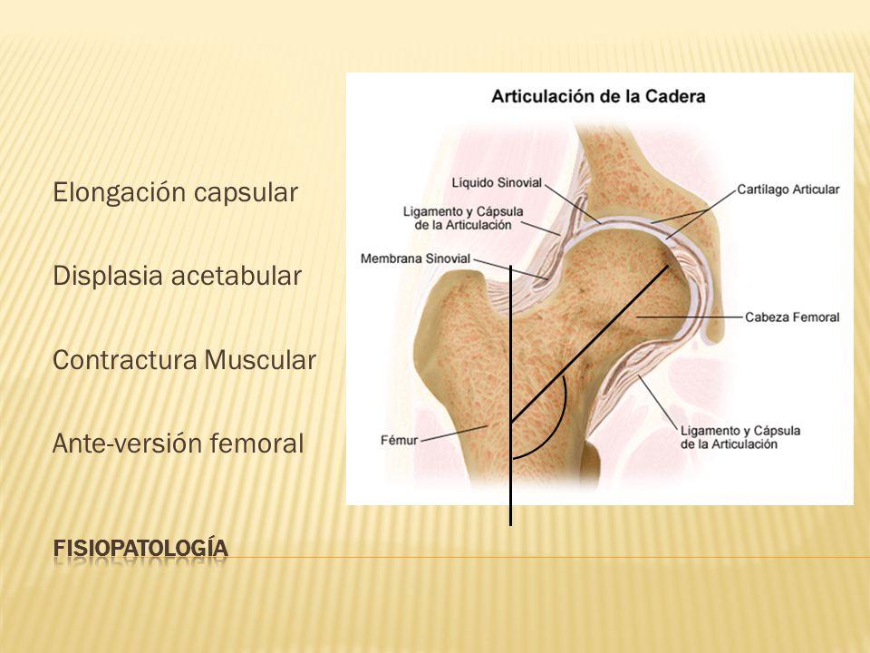 Elongación capsular Displasia acetabular Contractura Muscular Ante-versión femoral