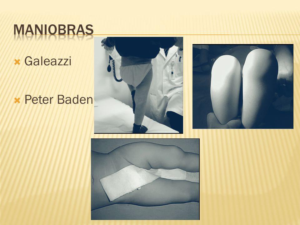 Ultrasonografía visualiza el rodete acetabular cartilaginoso.