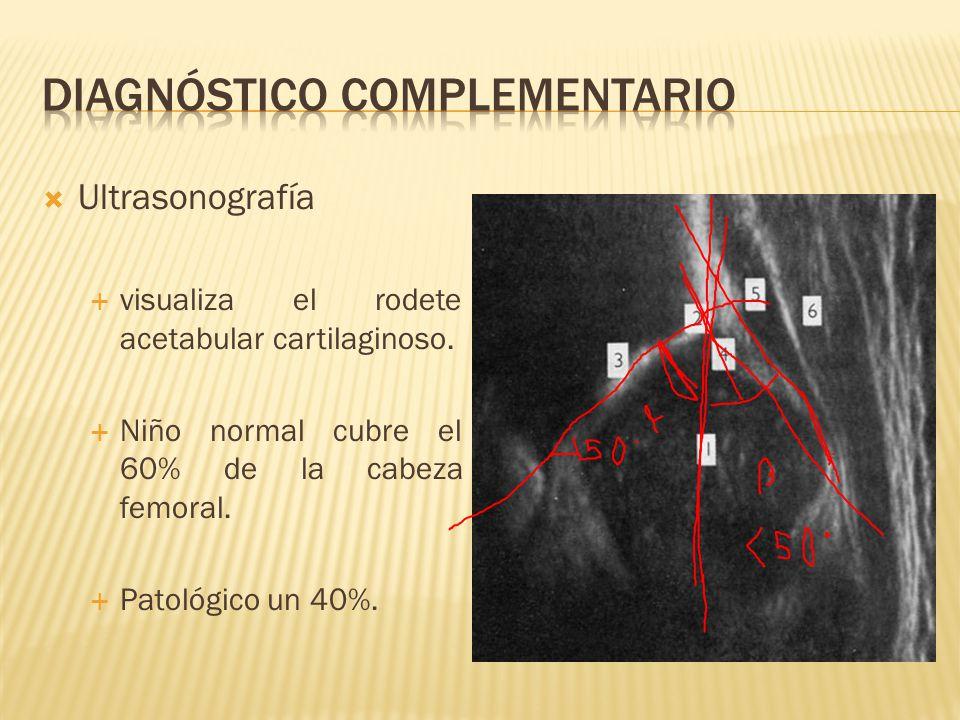 Ultrasonografía visualiza el rodete acetabular cartilaginoso. Niño normal cubre el 60% de la cabeza femoral. Patológico un 40%.