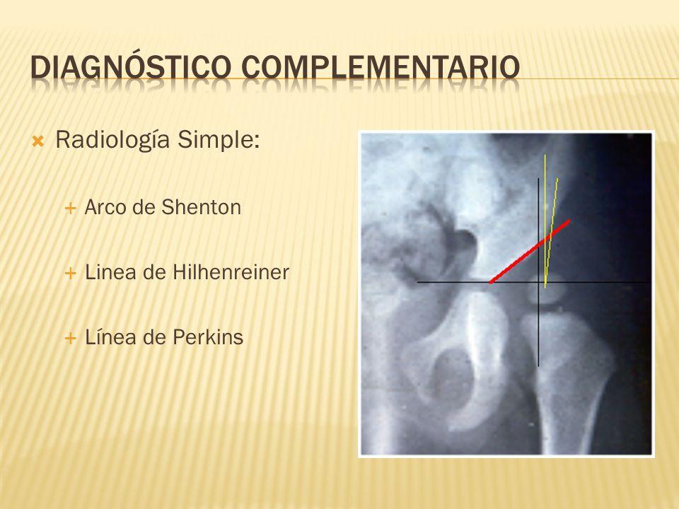 Radiología Simple: Arco de Shenton Linea de Hilhenreiner Línea de Perkins
