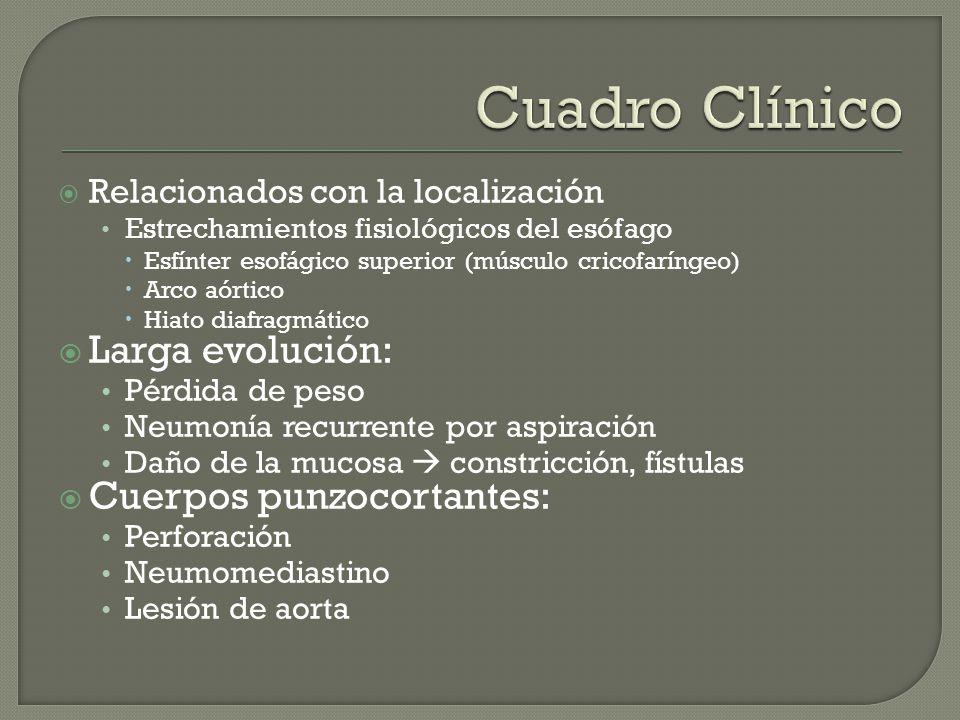 Relacionados con la localización Estrechamientos fisiológicos del esófago Esfínter esofágico superior (músculo cricofaríngeo) Arco aórtico Hiato diafr