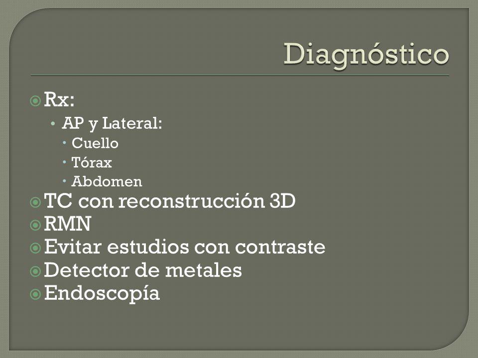 Rx: AP y Lateral: Cuello Tórax Abdomen TC con reconstrucción 3D RMN Evitar estudios con contraste Detector de metales Endoscopía