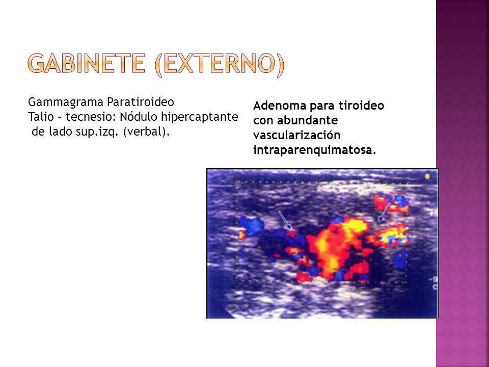 Adenoma para tiroideo con abundante vascularización intraparenquimatosa. Gammagrama Paratiroideo Talio – tecnesio: Nódulo hipercaptante de lado sup.iz