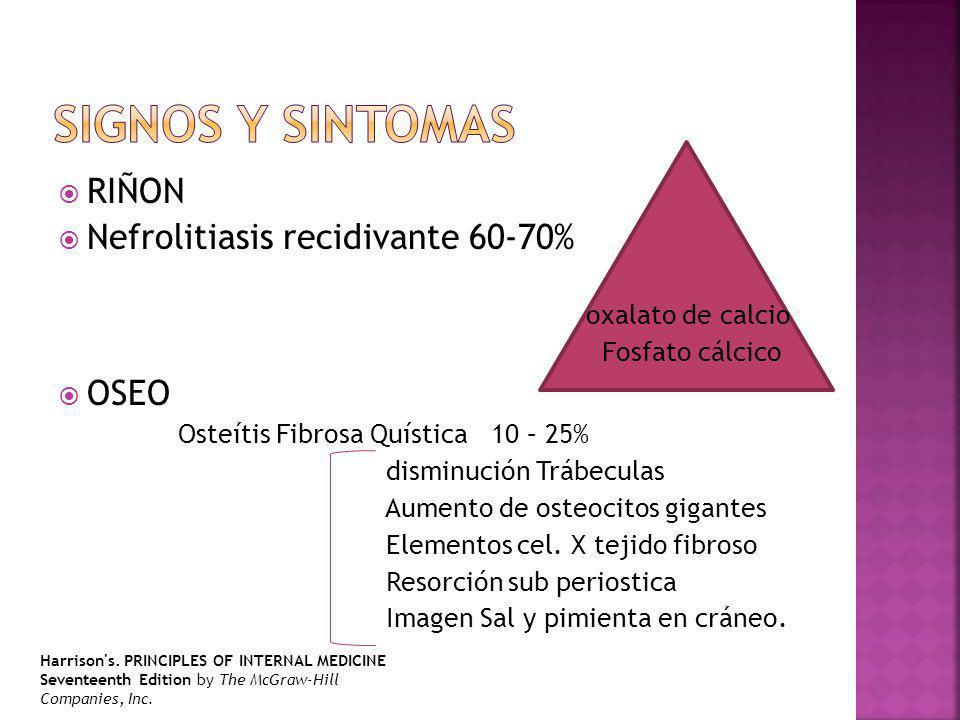 RIÑON Nefrolitiasis recidivante 60-70% oxalato de calcio Fosfato cálcico OSEO Osteítis Fibrosa Quística 10 – 25% disminución Trábeculas Aumento de osteocitos gigantes Elementos cel.
