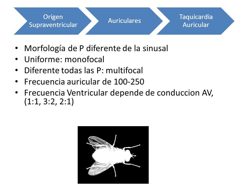 Morfología de P diferente de la sinusal Uniforme: monofocal Diferente todas las P: multifocal Frecuencia auricular de 100-250 Frecuencia Ventricular d