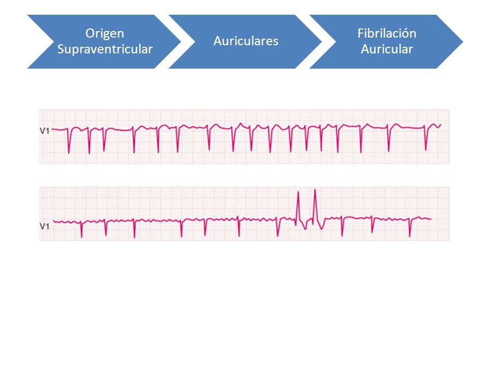 Origen Supraventricular Auriculares Fibrilación Auricular